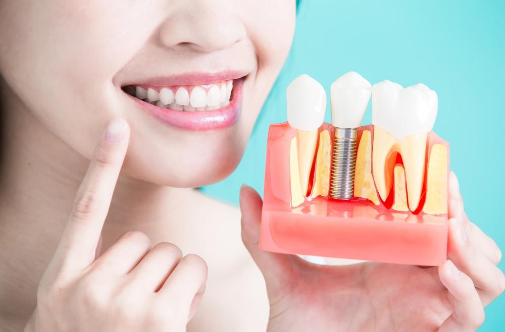 Dental Implants in Windsor Ca