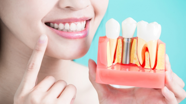 Dental Implants in Windsor Ca